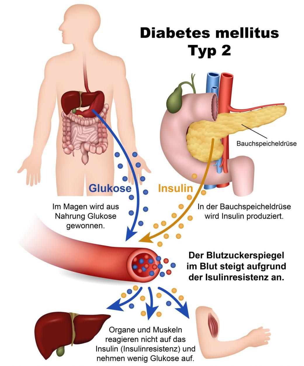 Welche Therapie bei Diabetes und Niereninsuffizienz?